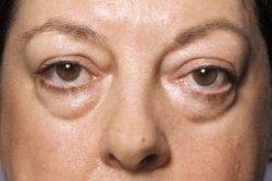 http://www.squidoo.com/under-eye-bags-help