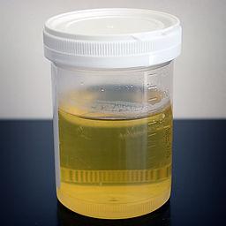 256px-Urine_sample