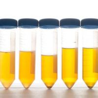 Things We Don't Talk About #382: Urine Samples